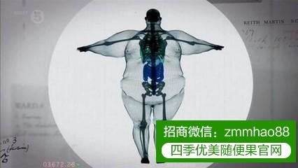 六种肥胖人群的类型,看看你是哪一种