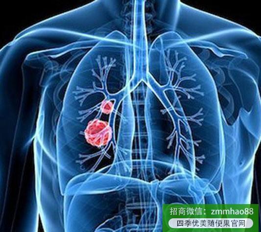 随便果:长期吃梨有润肺止咳的功效吗?